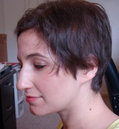 my modern pixie cut my alopecia story