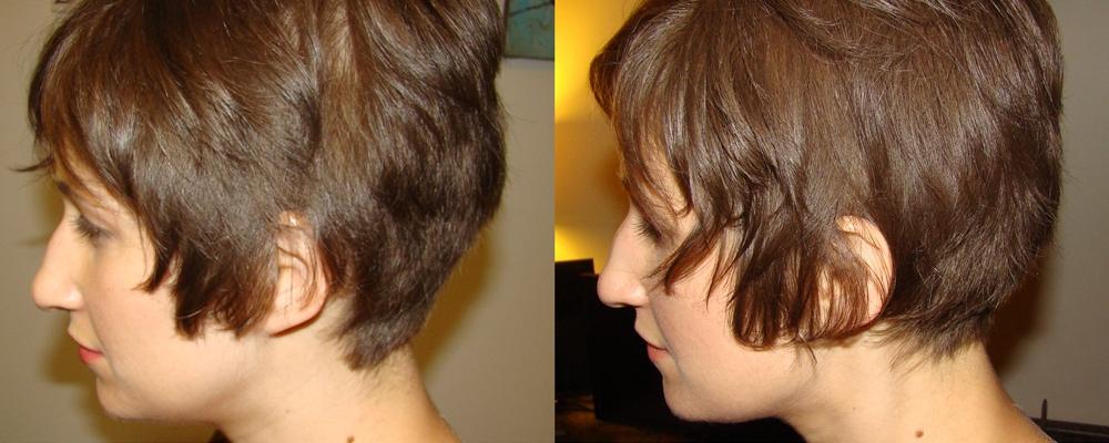 how i hide my alopecia bumble and bumble hair powder