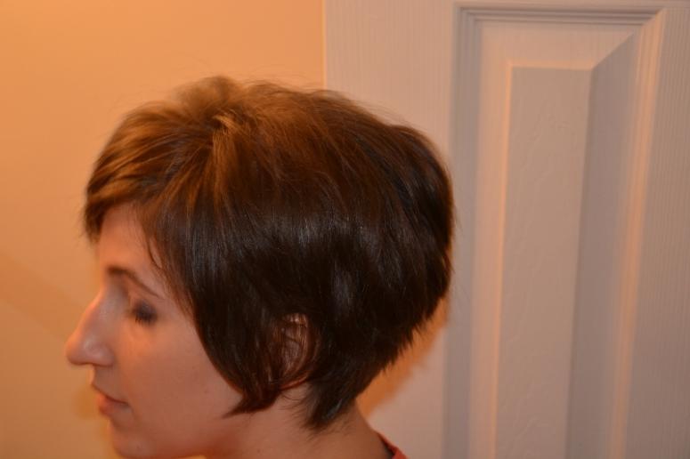 alopecia and hair loss solutions