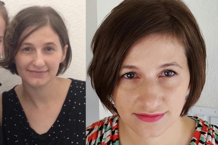 before-and-after-mega-x-plexus, hair loss, alopecia, omega